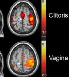 Mapa cerebral del placer de la mujer - Abad-Psicologia